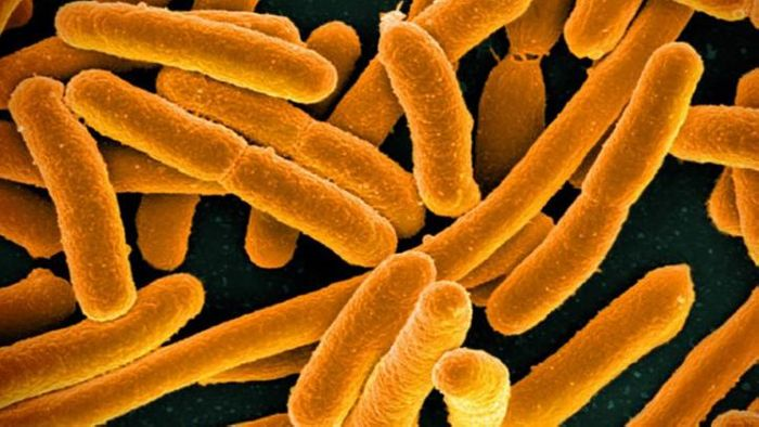 This is a colorized scanning electron micrograph image of E. coli. / Credit: National Institute of Allergy and Infectious Diseases