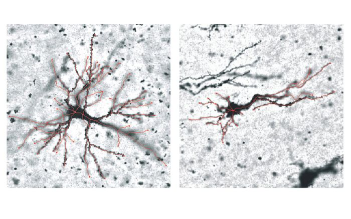 Grey matter neurons in the outward folds (left) and inward folds (right), differences shown in red. . / Credit: RMIT University