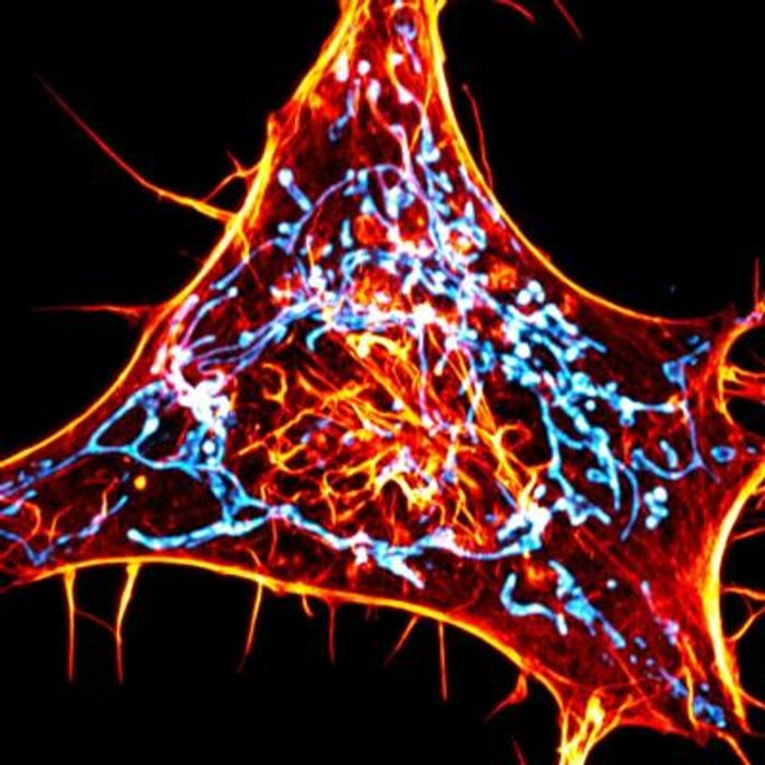 A cancer cell labeled for actin (red) and mitochondria (cyan). The scientists designed novel probes that specifically monitor interactions between actin and mitochondria. / Credit: Salk Institute/Waitt Advanced Biophotonics Center