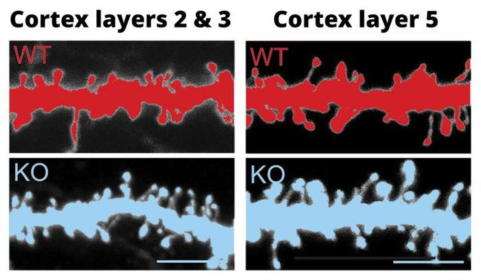 Dendritic spines of cortical neurons in layers II and III (left) and layer V (right) in 4-week-old wildtype (top) and FABP4 KO mice (bottom). Like postmortem brains of people with autism spectrum disorders, the number and density of dendritic spines was greater in the FABP4 KO mice than in the control mice. / Credit: RIKEN