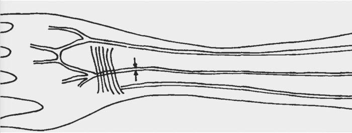 Sketch of median artery in human forearm / Credit: Prof. Dr. Hab. Maciej Henneberg, University of Zurich
