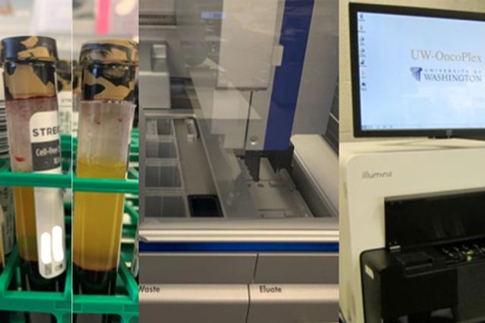 "A set of images show the UW-OncoPlex cell-free DNA, or ""liquid biopsy"" work flow at the Genetics and Solid Tumors laboratory at University of Washington Medical Center in Seattle. The special cell-free DNA blood collection tubes on the left have been spun down. The top yellow portion is the plasma. / Credit: Colin Pritchard/UW Medicine"