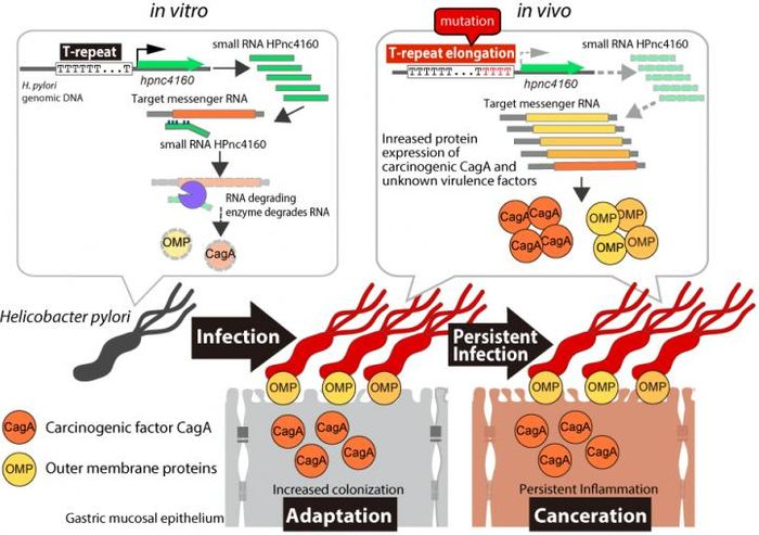 Persistent infection and, potentially, cancer development are regulated by H. pylori small RNA HPnc4160. Gastric mucosa-infecting H. pylori carry a mutation in a T-repeat sequence upstream of the HPnc4160 gene. As HPnc4160 then decreases, pathogenic factors increase, enabling to H. pylori to easily infect the gastric mucosa for a long period of time. / Image credit: Osaka University