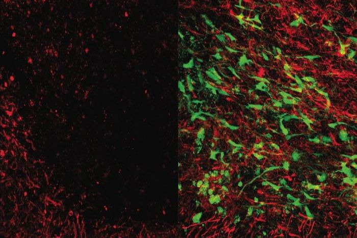 Brain tissue that's been damaged by white matter stroke (left) and treated with glial cell therapy (right). Myelin (red) protects neuronal connections and is in a white matter stroke. Glial cell therapy (green) helps restore lost myelin, improves connections. Credit: UCLA Broad Stem Cell Research Center/Science Translational Medicine