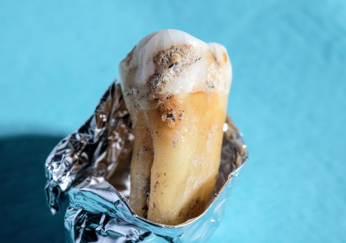 Close-up of ancient dental calculus on an ancient human tooth. / Credit: Werner Siemens Foundation, Felix Wey