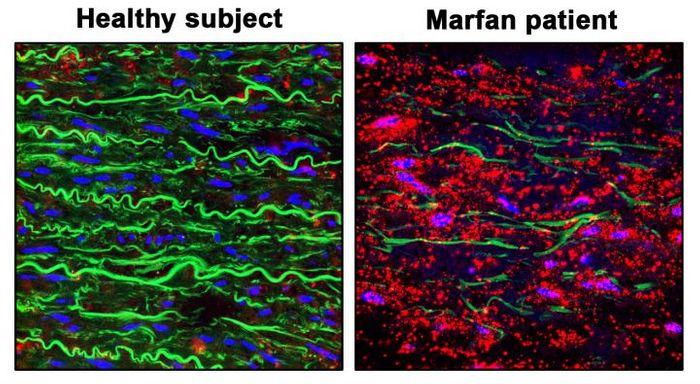 Staining showing pVASP-S239 (red), elastic fibers (green) and nuclei (blue) in the aortic wall of a healthy donor (Healthy Aorta) and a patient with Marfan Syndrome (Diseased Aorta from Marfan Patient). The images show how the NO-sGC-PRKGI pathway is over-activated in the aortic wall from Marfan patiens. / Credit: CNIC/ CSIC