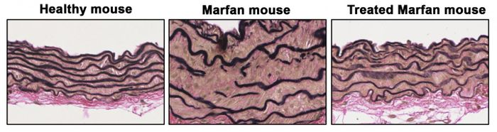 Aortic sections show disarrayed elastic fibers (black lines), thick vascular wall in Marfan mouse, reverts when Prkg1 protein is reduced. / Credit: CNIC/CSIC