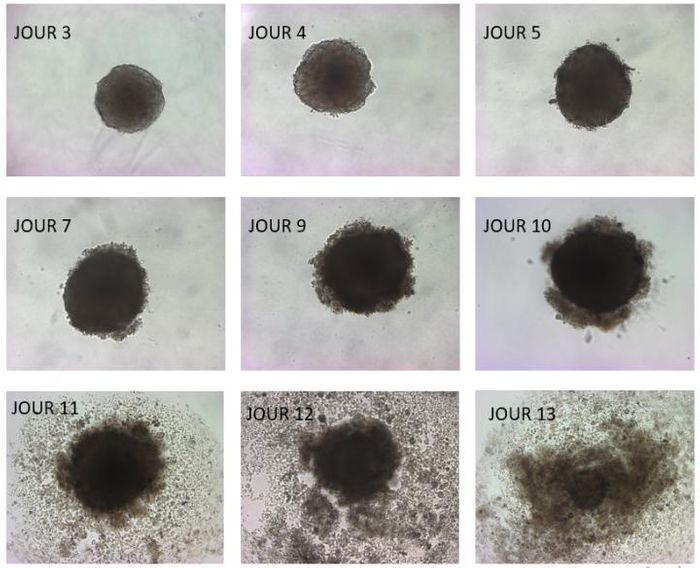 3D tumors disintegrate within days after exposure to omega-3 DHA, found mainly in fish. Tumor cells in acidosis take up fatty acids like DHA but can't store it, which poisons them to death. / Credit: Copyright UCLouvain