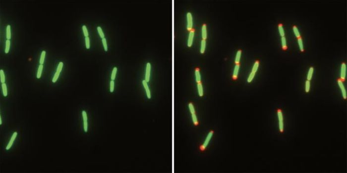E. coli cells go from nutrient-rich (left) to nutrient-free conditions (right). The cytoplasm (green) and the periplasm (red) can be seen. / Credit: Kerwyn Casey Huang laboratory, Stanford University
