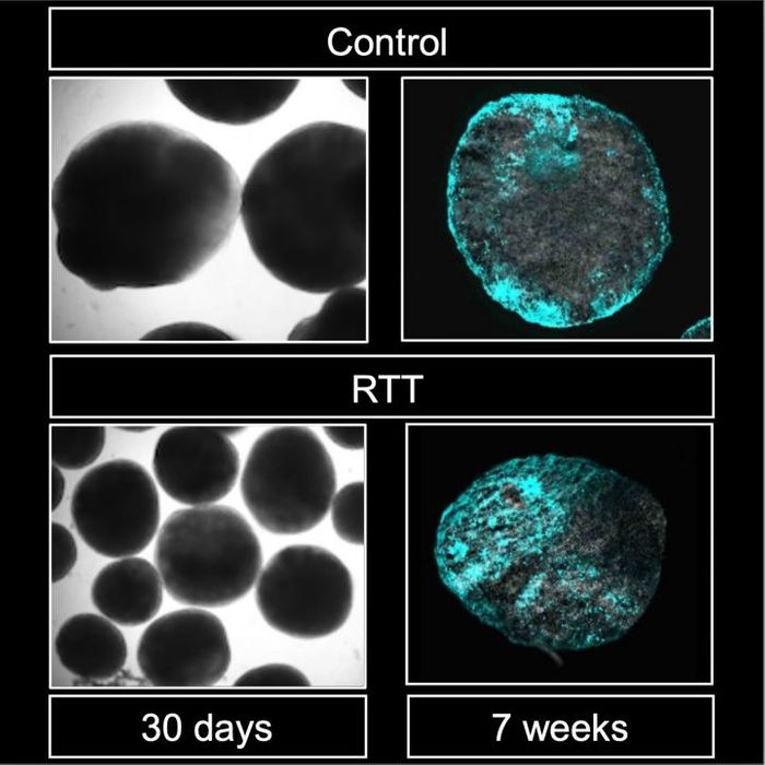 Brain organoids generated from control (top) and Rett syndrome (left) patients, including astrocytes (cyan). Color intensity is higher in Rett-derived organoids./ Credit: Kyushu University/Nakashima Lab