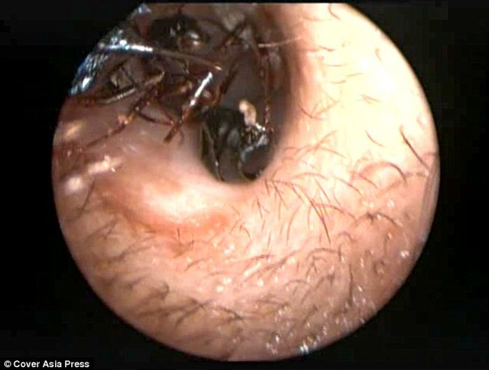 Ants are removed from the girl's ears in a procedure.