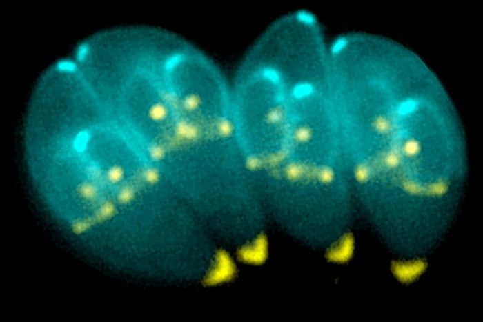 Toxoplasma gondii could be related to aggression in some patients