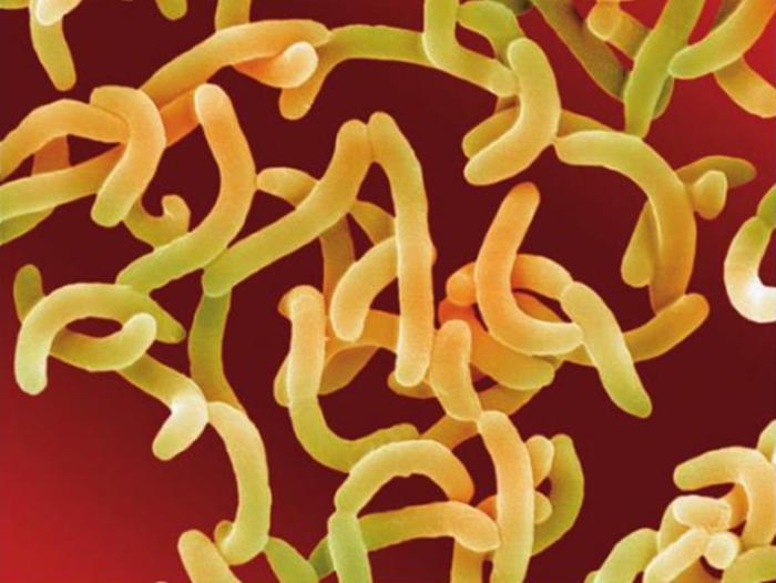 Vibrio cholerae causes cholera.