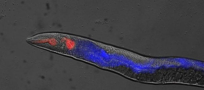 This is cellular necrosis in C. elegans. / Credit: David Gems, UCL