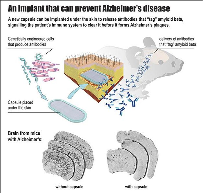 This is an infographic of how the implanted capsule releases antibodies to the brain.