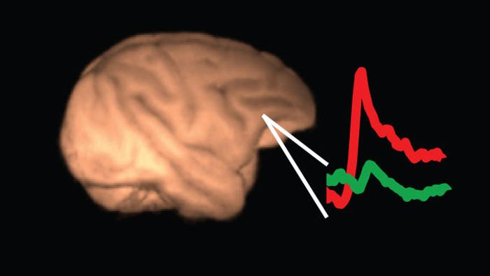 Amyloid PET imaging boosts early detection of Alzheimer's disease.
