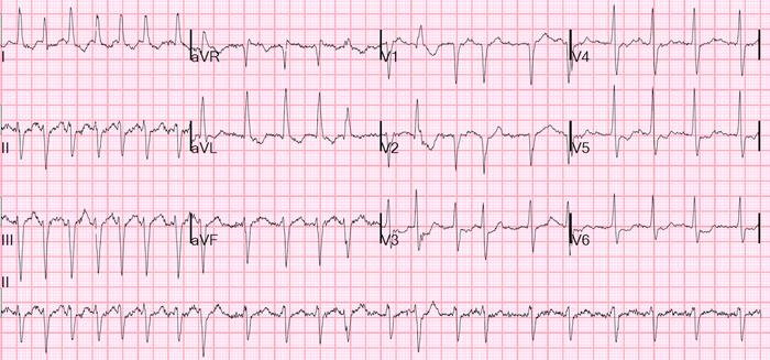 Source: Dr. Smith's ECG Blog