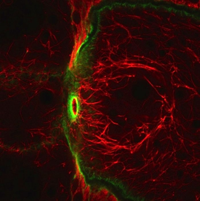 High magnification view of the filaments (in red) made by the newly discovered atypical tropomyosin shows that they do not overlap with actin filaments (in green). / Credit: UCSB/Cell Cho et al