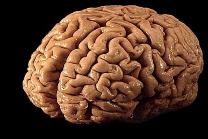 Brain banks provide tissue for live saving research