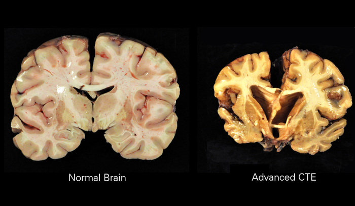 Image of chronic traumatic encephalopathy Date	17 October 2014 Source	http://www-tc.pbs.org/wgbh/pages/frontline/art/progs/concussions-cte/h.png Author	Boston University Center for the Study of Traumatic Encephalopathy