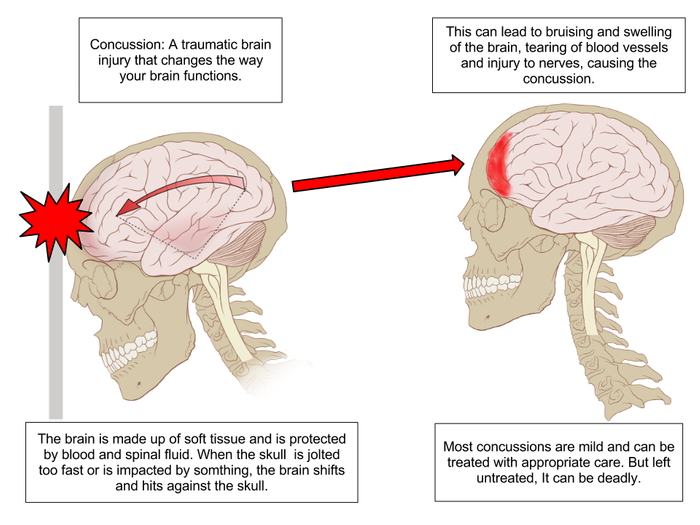 This is your brain after head trauma