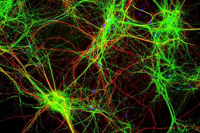 Dendrites are part of how the brain processes visual input