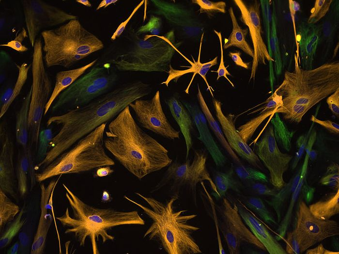 Multipotential Human Neural Progenitor Cells / Credit: NIH