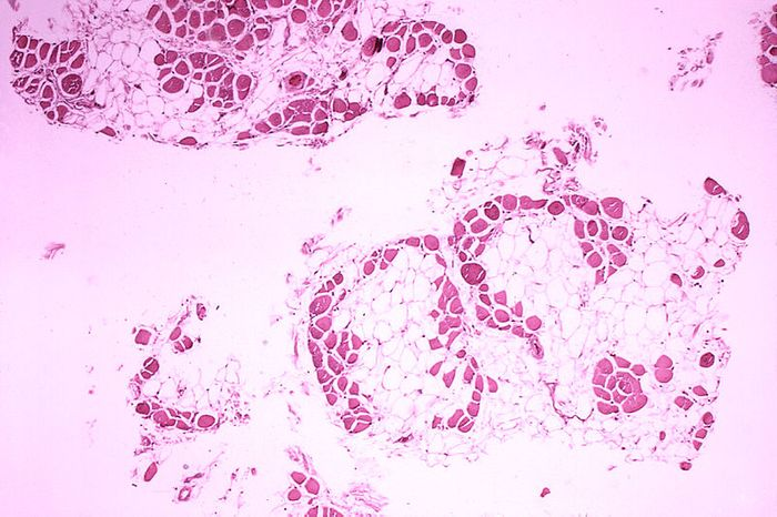 Histopathology of gastrocnemius muscle from patient who died of Duchenne muscular dystrophy. Muscle shows extensive replacement of muscle fibers by adipose cells. Credit: CDC Public Health Image Library