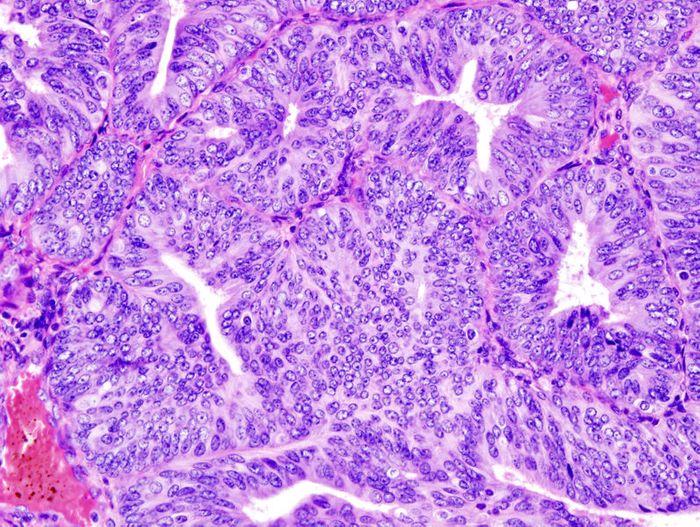 Histopathologic representation of endometrioid adenocarcinoma demonstrated in endometrial biopsy. (Credit: LBiller)