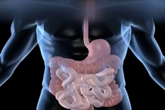Gut bacteria are affected by strokes