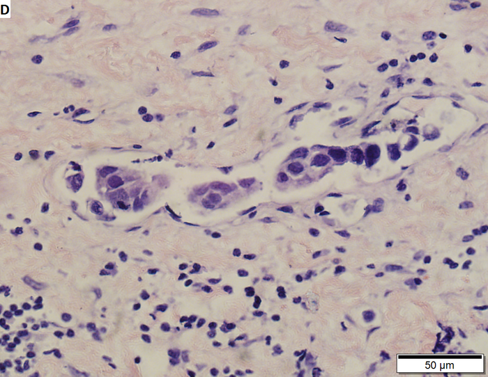 High grade urothelial carcinoma, the most common type of bladder cancer. Credit: TexasPathologistMSW