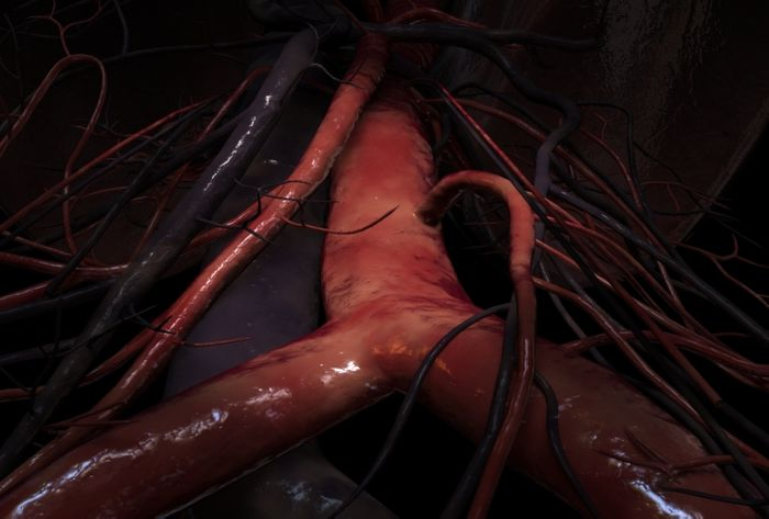A 3D illustration of the abdominal aorta at the iliac junction. Credit: Scientific Animations