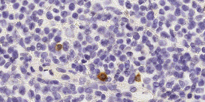 NK cells (brown) patrolling between cells of a healthy human lymph node. Source: Institute of Pathology, University of Bern