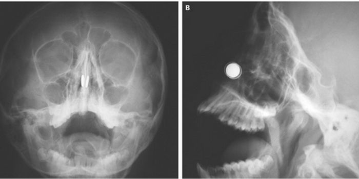 Magnets are the bright white disks. | Image Credit: NEJM
