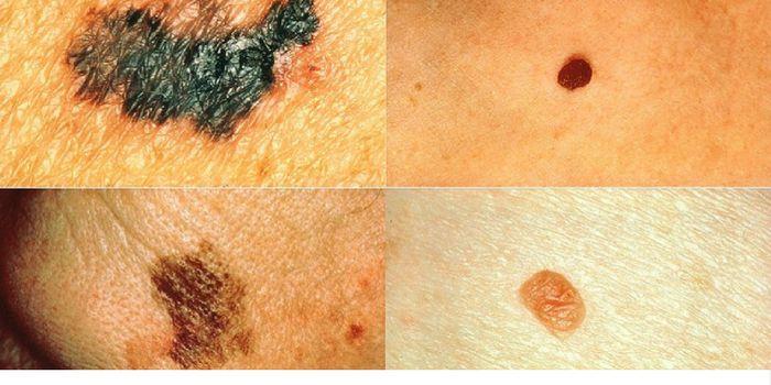 Left: melanomas. Right: normal moles. \\ Image credit: Wikipedia.org
