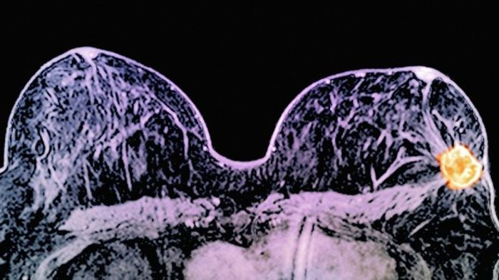 New tailored treatments for HER2 positive breast cancers on the horizon