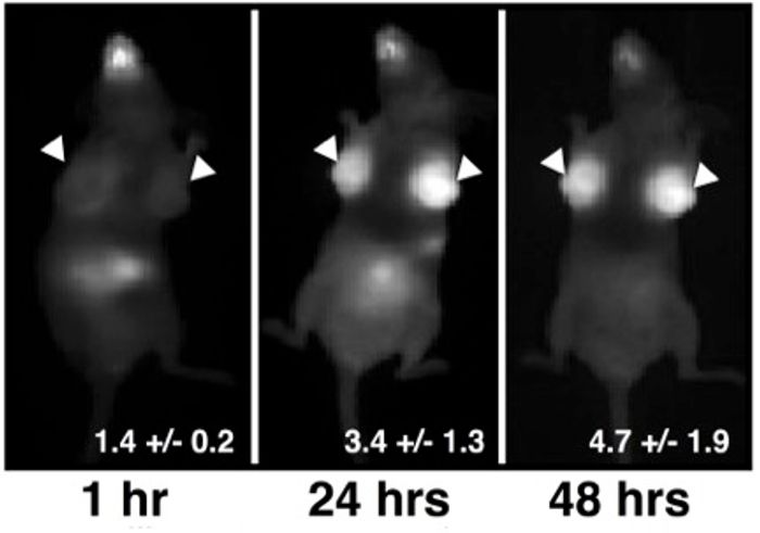 Breast cancer tumors light up with infrared light