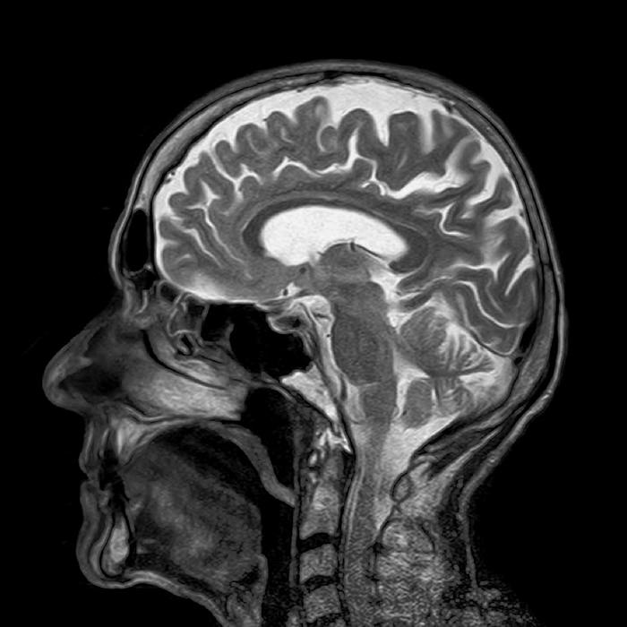 Safer way to administer brain MRIs