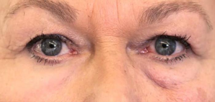 Left: skin treated XPL; Right: no treatment