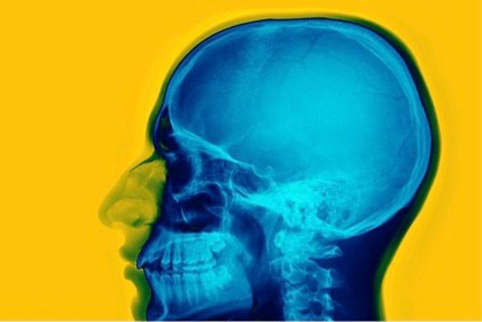 Newly found stem cells can repair damaged skulls