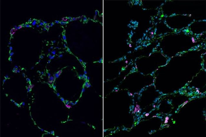 Lab-grown lung-like tissue (left) resembles adult human lung (right)   Image: UCLA
