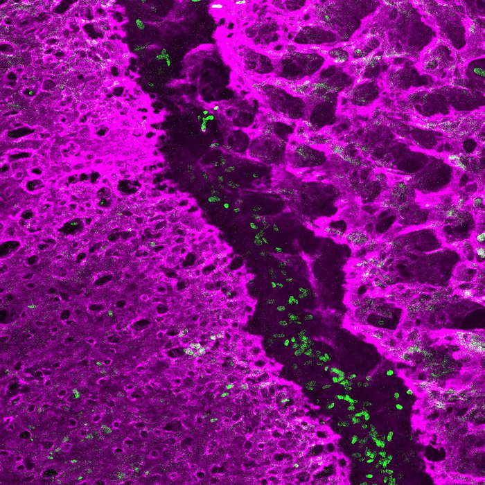 The early postnatal coronal suture contains stem cells (green) that separate and grow the neighboring bones (magenta). / Credit: Image and caption courtesy of D'Juan Farmer/Crump Lab/USC Stem Cell
