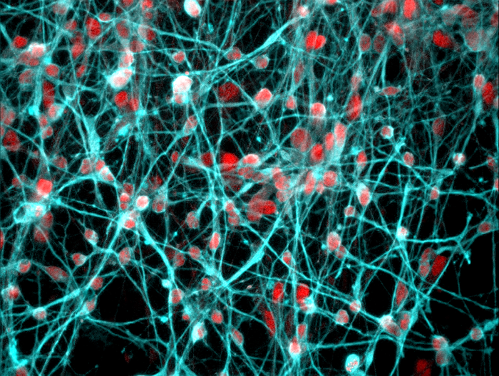 A magnified image of developing young human neurons. The mineralocorticoid receptor, coloured red, was found in the cell nucleus of these neurons. / Credit: University of Bristol