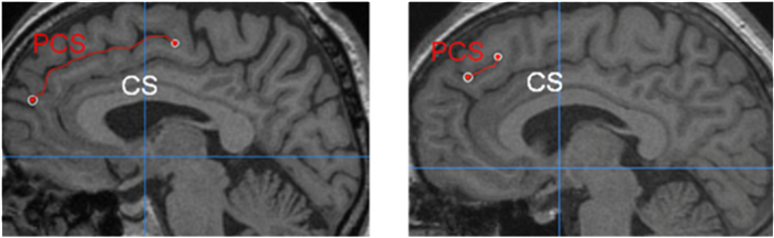 Different length of the paracingulate sulcus (PCS) relative to the corpus callosum (CS).
