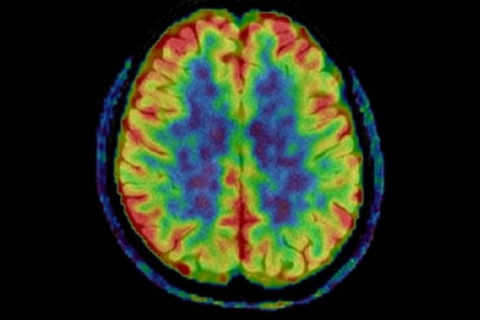 An imaging agent reveals CTE patterns in the brain