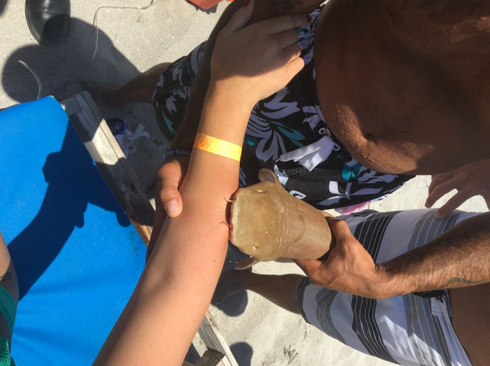 A baby nurse shark locked itself to a female beach-goer's arm and refused to let go.