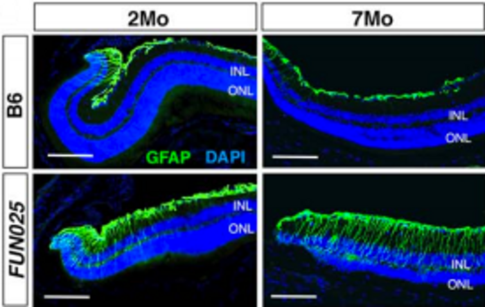 Age-dependent retinal abnormalities in FUN025 mice - the research model - are shown here / Credit: eLife Lee et al