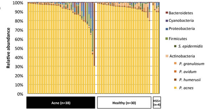 Each column shows the relative abundances of the bacterial species found in each individual. P. acnes was the dominant skin bacterium in all samples but one. P. acnes avg: 91% of the bacteria, levels of P. acnes and P. granulosum increased in the healthy individuals, while minor taxa increased in the acne group. / Credit: Scientific Reports 2017 Barnard et al