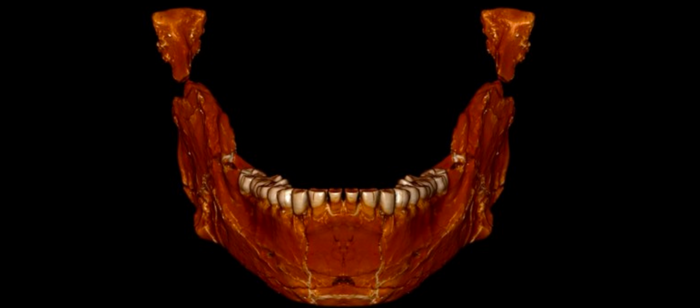 A reconstruction of the mandible from the 300,000+ year-old fossil found in Morocco.
