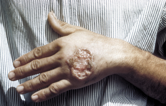 Skin ulcer due to leishmaniasis, hand of Central American adult. / Credit: CDC/Dr. D.S. Martin